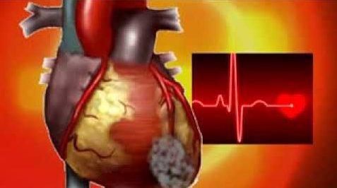 Инфаркт миокарда: симптомы, первые признаки, первая помощь