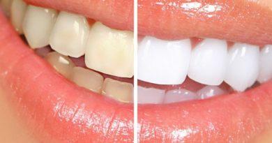 Как отбелить зубы в домашних условиях без вреда для эмали?