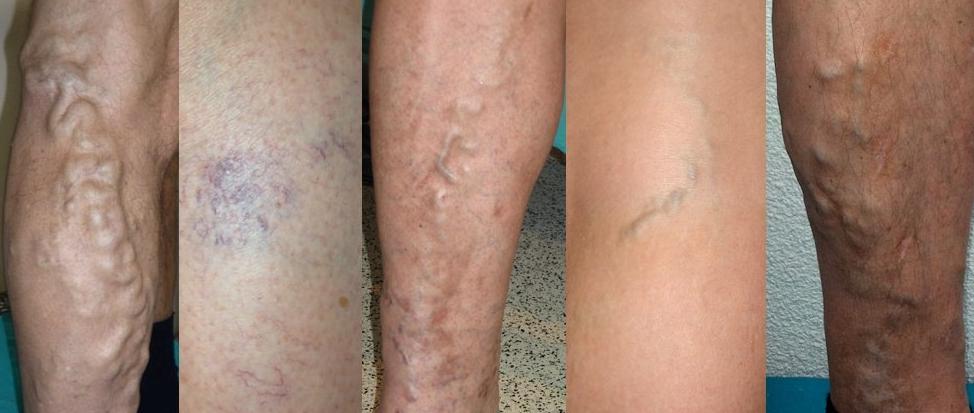 варикозное расширение вен на ногах симптомы и лечение