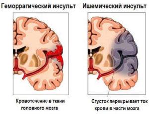 Инсульт у мужчин и женщин: симптомы, первые признаки, последствия.