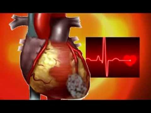 Признаки инфаркта у м