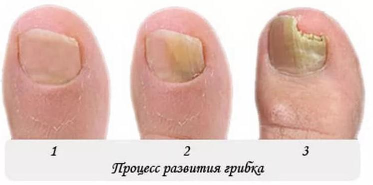стадии грибка на ногтях