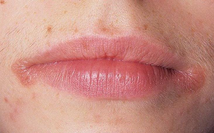 герпес на губах лечение
